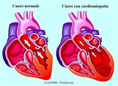 cardiopatia ischemica acuta  cronica dilatativa sintomi
