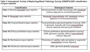 Lupus Nephritis Lupus Nephritis