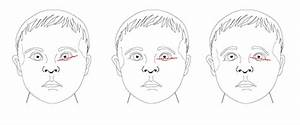 Facial Dysmorphology - Division of Genetics and Metabolism ...