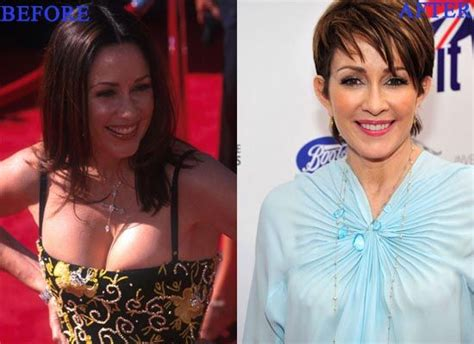 Patricia Heaton Plastic Surgery Photo Before And After