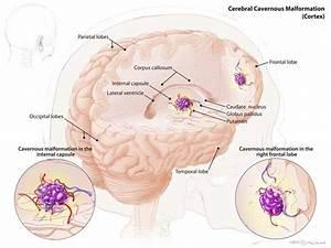 Cerebral Cavernoous Malformation  Ccm Or Cavernoma