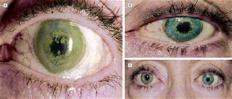 Corneal Tattooing phototherapeutic keratectomy  treatment  long term 1998 x 852 · png