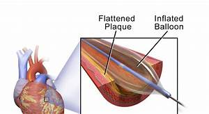 Guide To Balloon Angioplasty - Step By Step Procedure
