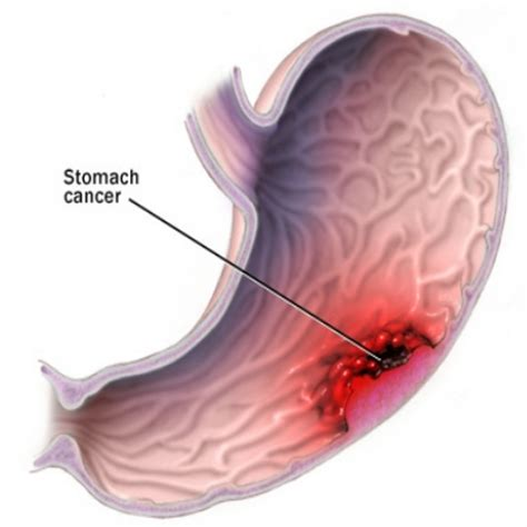 Symptoms Of Stomach Cancer  How To Identify Stomach. Term Life Insurance Companies. How To Get Off A Mailing List. Secured Small Business Loan Lsat Preptest 61. Melrose Wakefield Oral Surgery. Energy Providers Houston Tx At&t Voice 200. What To Use For A Teething Baby. Bank Of America Fha Loan Health Net Locations. Carpet And Upholstery Steam Cleaner Rental