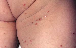 Multiple Firm  Painless Erythematous Papules With A