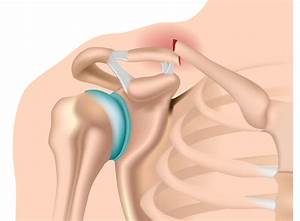 Clavicle Fracture  Symptoms  Diagnosis  U0026 Treatment