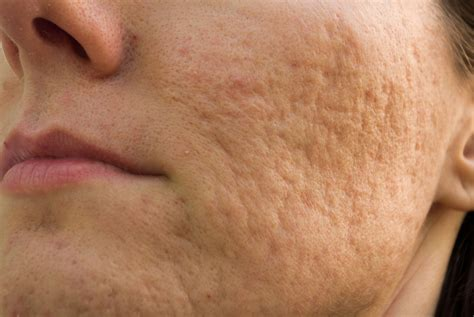 Dermatix Even Celebs Get Acne Scars