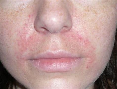 periorale dermatitis oder warum ich avene  liebe