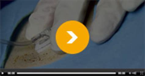 pr駘钁ement sanguin sur chambre implantable perfusion et nutrition e universit 233