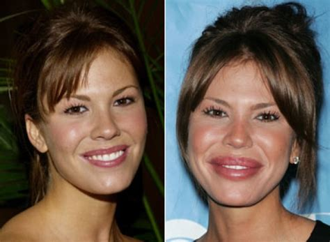 Too Much Botox And Restylane