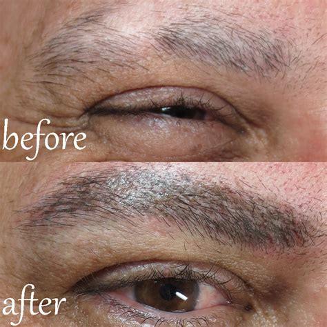 alopecia client male permanent eyebrows sheila bella