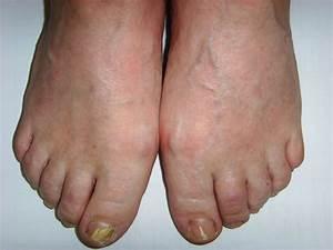 Чебоксары лечение грибка ногтей