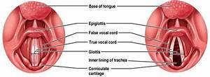 Larynx Cancer