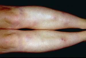 Medical Pictures Info – Erythema Nodosum