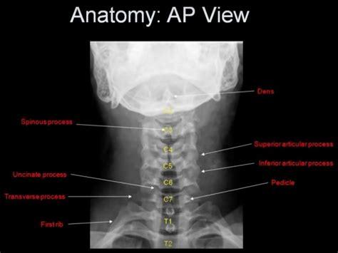 Mri Cervical Spine Anatomy