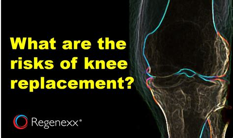 What Are Knee Replacement Risks? An Update Regenexx®