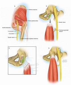 Proximal Hamstring Tendon Repair