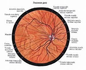 Сетчатка глаза повреждение при гипертонии