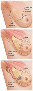 Breast Anatomy Surgery