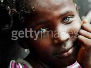 Can Black people have Blue or Grey eyes? | Yahoo Answers