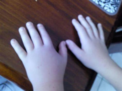 Lymphedema Hand Treatment