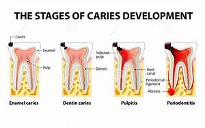 Dental Caries  Tooth Caries Or Decay