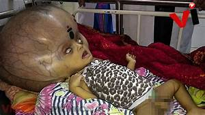 Baby With 'World's Largest Head' Has Life Saving Surgery ...