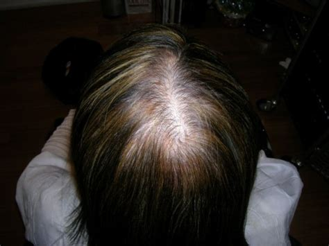 female pattern baldness short hairstyle