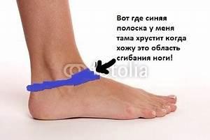От чего болят локтевые суставы с внутренней стороны