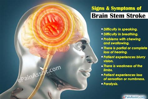 The Brainstem Stroke Education  Autos Post. 11 Week Signs. Diffuser Signs. Intuition Signs. Tail Signs. Hotel Indoor Signs Of Stroke. Instgram Signs. Lost Voice Signs. Kids Signs Of Stroke
