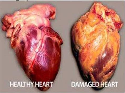 healthy heart  unhealthy heart