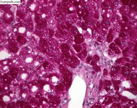 hepatic glycogenosis humpathcom human pathology