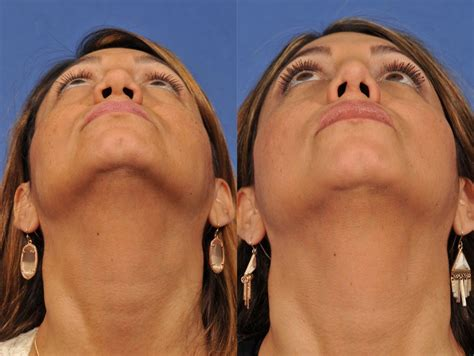 Pin on Plastic Surgery Before & After