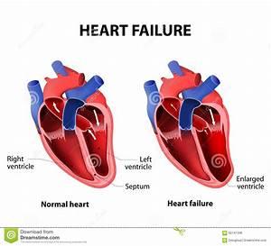 Heart Failure Stock Vector  Illustration Of Dysfunction