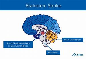 Pica Brainstem Stroke Diagram