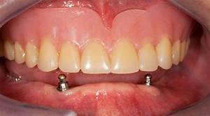 tooth pain after temporary crown