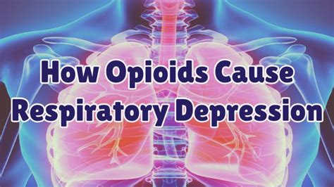 opioid    respiratory depression