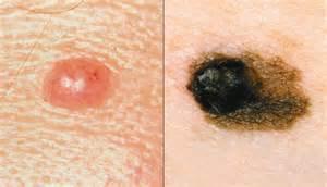 Benign vs Malignant Melanoma Mole