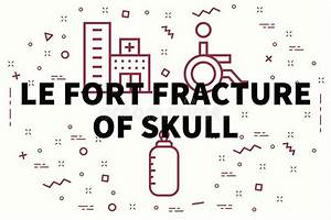 Le Fort Skull Fractures Stock Vector  Illustration Of Bone