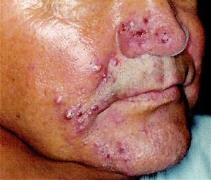 Demodex abscesses: clinical and therapeutic challenges ...