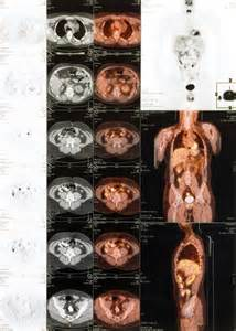 difference between cat scan and ct scan difference between pet scan and ct scan answers on healthtap