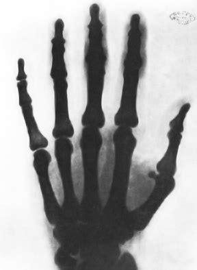 Рэнтгенаўскі здымак рукі Тэслы - Nikola Tesla - Wikipedia in 2020 | Nikola tesla, Tesla, Nicolas ...