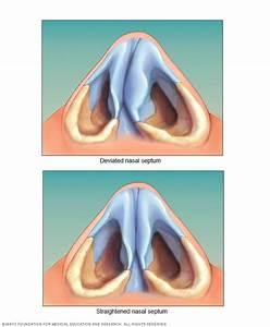 Broken Nose - Symptoms And Causes