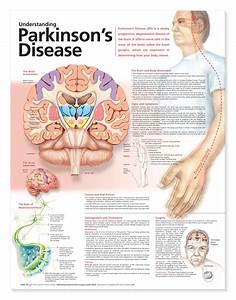 Understanding Parkinson U2019s Disease Anatomical Chart  2nd