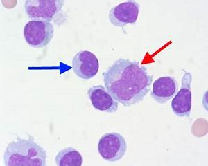 Lymphocytes vs. Monocytes - LabCE.com, Laboratory ...
