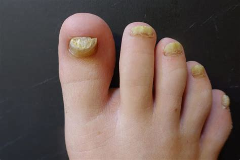 Major Causes Of Nail Fungus  Tnft. Edinburgh Postnatal Signs Of Stroke. Soul Eater Character Signs Of Stroke. Post Traumatic Signs. Face Painting Signs Of Stroke. Mythology Signs. Streptococcus Pneumoniae Signs. Dark Side Signs. Determination Signs