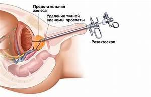 Таблетки против рак простаты