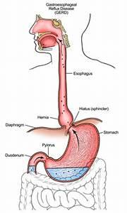 Gastroesophageal Reflux ( GERD ) GERD