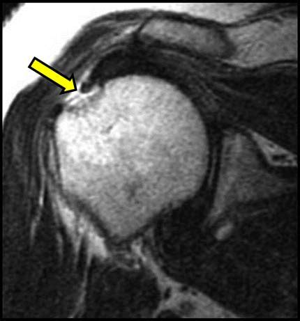 What is MRI of the Shoulder?