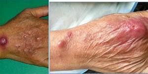 Disgusting Skin Diseases | www.pixshark.com - Images ...
